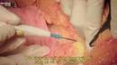 Phẫu thuật tạo hình thành bụng toàn phần - Tiến sĩ, Bác sĩ Mai Mạnh Tuấn