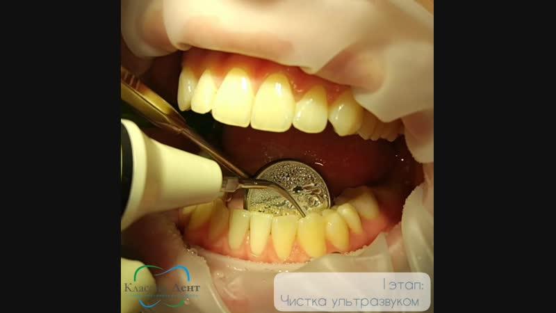 Профессиональная чистка зубов в Классик-Дент
