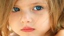 Эту девочку никто не хотел удочерять, потому что у неё... Трогательная история из жизни!