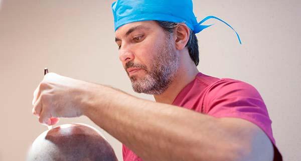 Как выбрать лучшего врача по пересадке волос?
