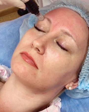 🌹Фракционная мезотерапия🌹 – это метод аппаратной косметологии, который представляет собой внедрение под кожу👩 косметических преп