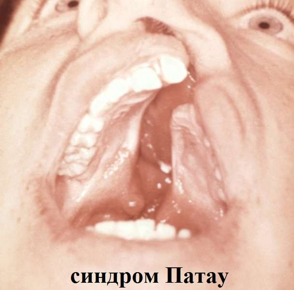 Аномалии зубных рядов фото