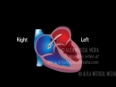 09 atrial septal defect ★ ASD ★ animation