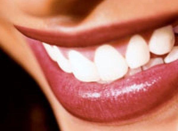 стоматология калуга смайлик: