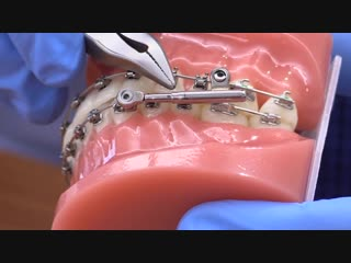 American Orthodontics PowerScope Activation. Ортодонтия.