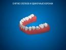 Ортопедическая стоматология Снятие слепков и одиночные коронки ДокторСтом в mp4