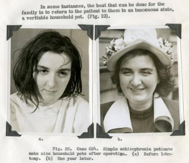 ЛОБОТОМИЯ Лоботомия - одна из самых мрачных страниц психохирургии, жуткая операция, которой подвергались пациенты, страдающие психическими расстройствами (причем в основном - женщины). О