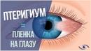 ✅Избавиться от плёнки на глазу птеригиума быстро и без хирургии вам поможет этот рецепт