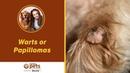 Бородавки или папилломы: симптомы и лечение / Warts or Papillomas - Symptoms and Treatments