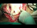 Сепарационная пластика с пересечением поперечной и внутренней косой мышц