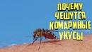 Почему чешутся комариные укусы? Как их лечить