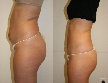 Упражнения для похудения бедер от анны куркуриной