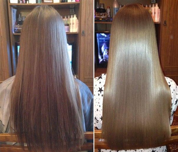 Покраснения на голове и выпадение волос
