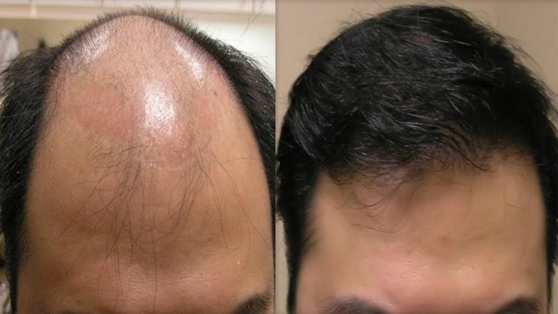 Kel Kafadan Bile Saç Çıkaran Doğal Formül - 100 Denenmiş Kesin Çözüm Önerileri
