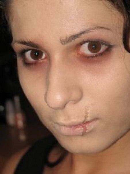Чем убрать шрам на лице в домашних условиях