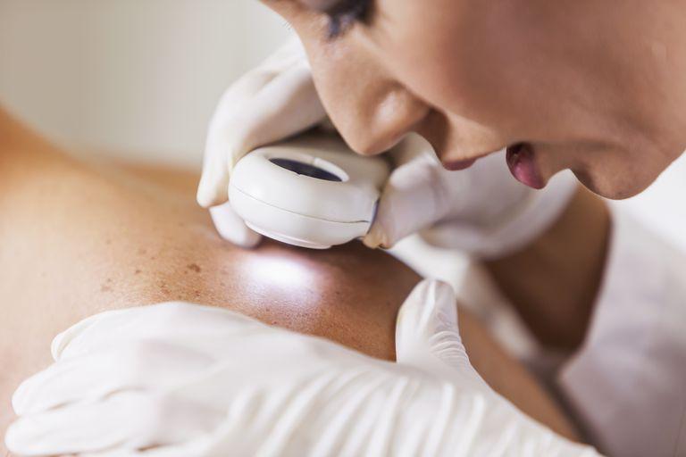 Электродикация при раке кожи