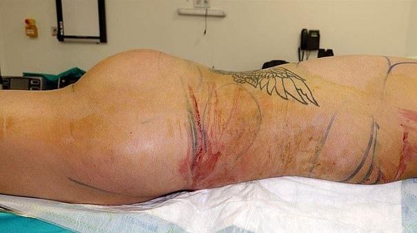 Фанат Кардашян перекроил табло и взялся за свою жопу (первая попытка оказалась неудачной) Самый известный двойник Ким Кардашян мужского пола, 23-летний британский визажист Джордан Джеймс Парке,