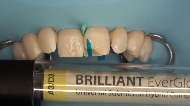 CCC - Monaldo Saracinelli StyleItaliano (Direct anterior multilayer restoration) BRILLIANT EverGlow