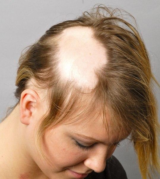 Выпадение волос причины и лечение у девочек