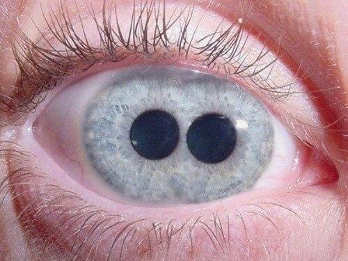 Двойной зрачок - чрезвычайно редкое заболевание, когда в одном глазу сразу два зрачка.