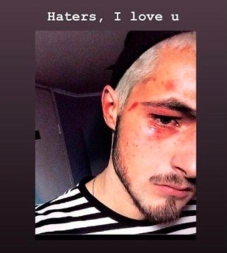 В киевском метрополитене напали и избили претендента на Евровидение (Фото)