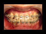 Orthodontic library ID. Opposite occlusion  Chart No.4449