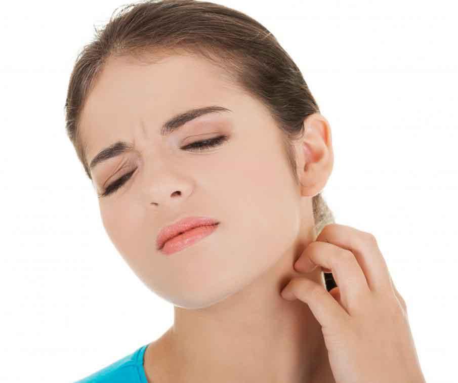 Аллергическая реакция на постельных клопов может вызвать зуд
