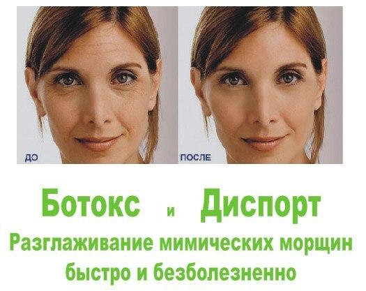 Ботекс морщин фото до и после отзывы Озёры