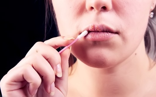 Действенные способы избавиться от простуды на губах