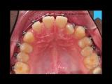 Видео 43. Изменения в процессе лечения брекетами Damon Q, Insignia, за 1 год.