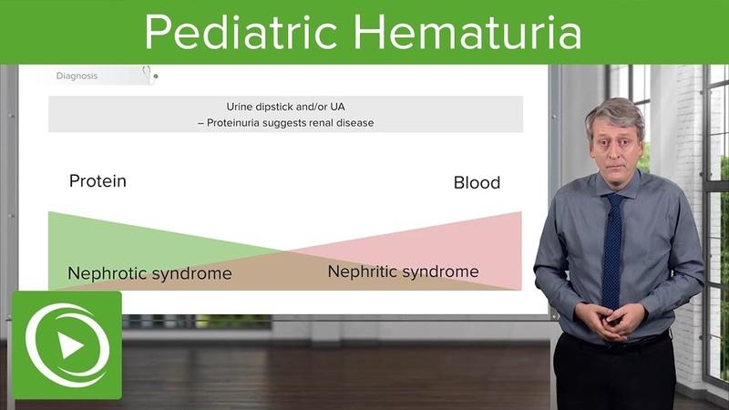 Pediatric Hematuria (Blood in Urine) – Pediatrics | Lecturio