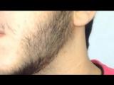 MINOXIDIL (МИНОКСИДИЛ) - Средство №1 для отращивания бороды