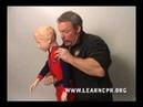Cấp cứu cho trẻ em bị nghẹn hồi sức tim phổi CPR