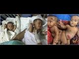 В Бангладеш впервые успешно разделили сиамских близнецов