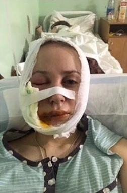 Челябинка пошла удалять зуб в частную клинику, и теперь она не чувствует половину лица. Жительница Челябинска попала в отделение челюстно-лицевой хирургии после удаления зуба в частной