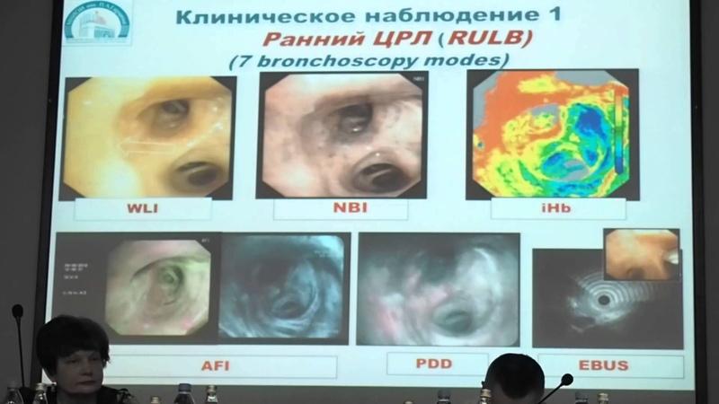 03 В В Соколов Мультимодальная бронхоскопия WLI HD, NBI, AFI, iHb, PDD, EBUS в диагностике и лече