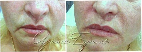 Коррекция губ после татуажа
