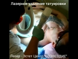 Лазерное удаление татуировки. ЛАЗЕР-ЭСТЕТ ЦЕНТР СОЗВЕЗДИЕ