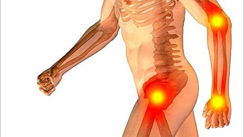 Болят суставы. Эта настойка поможет избавиться от болей.