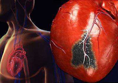 Заболевания сердечно сосудистой системы