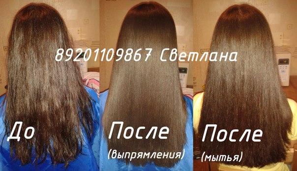 Гипотиреоз, Эутирокс и волосы.