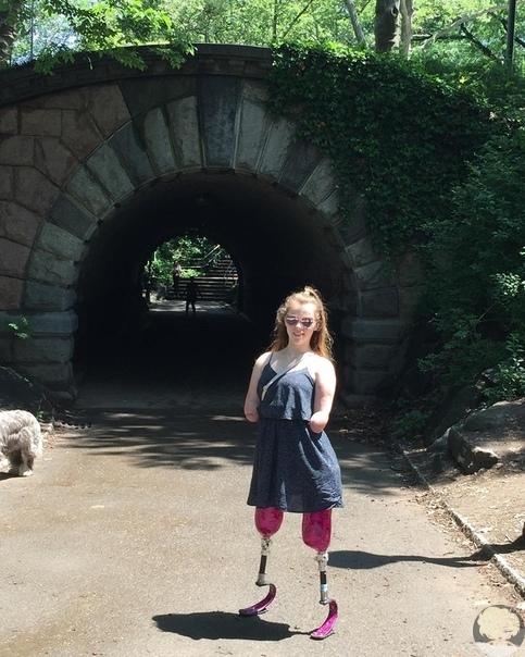 Изабелла Уолл является настоящим примером для подражания. В возрасте семи лет врачи диагностировали у неё бактериальный менингит, и в машине скорой помощи она едва не умерла от сердечного приступа. Девочке прочили один шанс из ста, но она выкарабкалась.
