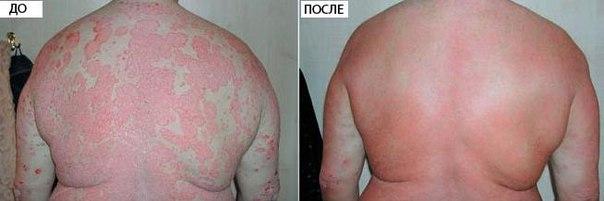 lechenie-psoriaza-na-azovskom-more-v-rossii