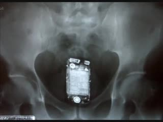 Top most weird objects found in human rectum x-ray