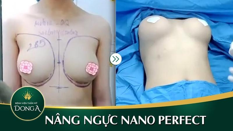 Kết quả nâng ngực nội soi Nano Chip tại BVTM Đông Á - YouTube