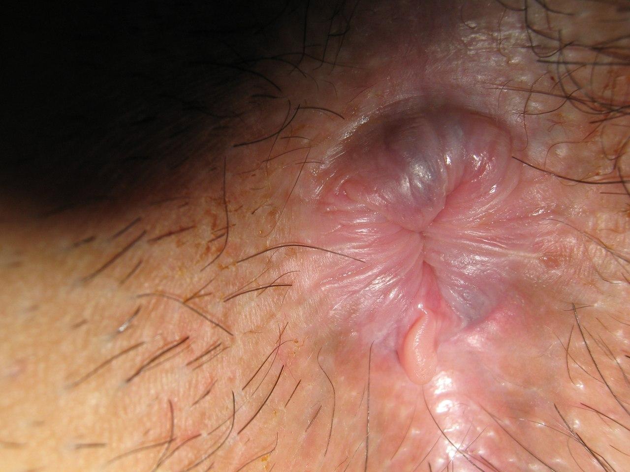 borodavki-vozle-anusa