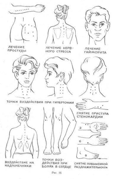 точки на теле человека,