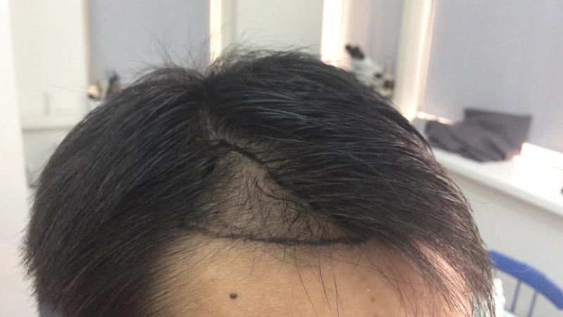 Пересадка волос бесшовным методом.