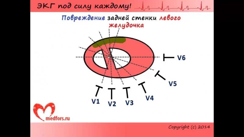 Лекция 10. Пропедевтика внутренних болезней. ЭКГ