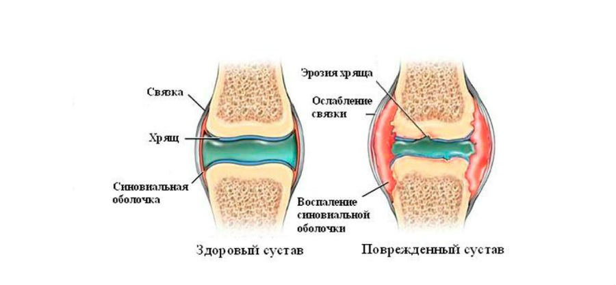 Растирка для суставов стройным одеколоном перелом локтевого сустава отклики